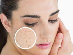Hướng dẫn chọn dưỡng ẩm cho da khô